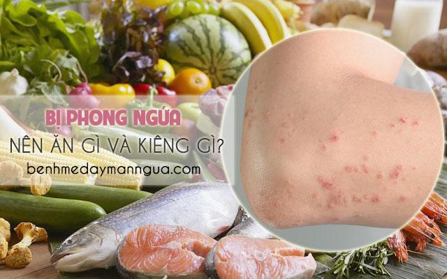 Bị bệnh phong ngứa nên ăn gì và không nên ăn gì?