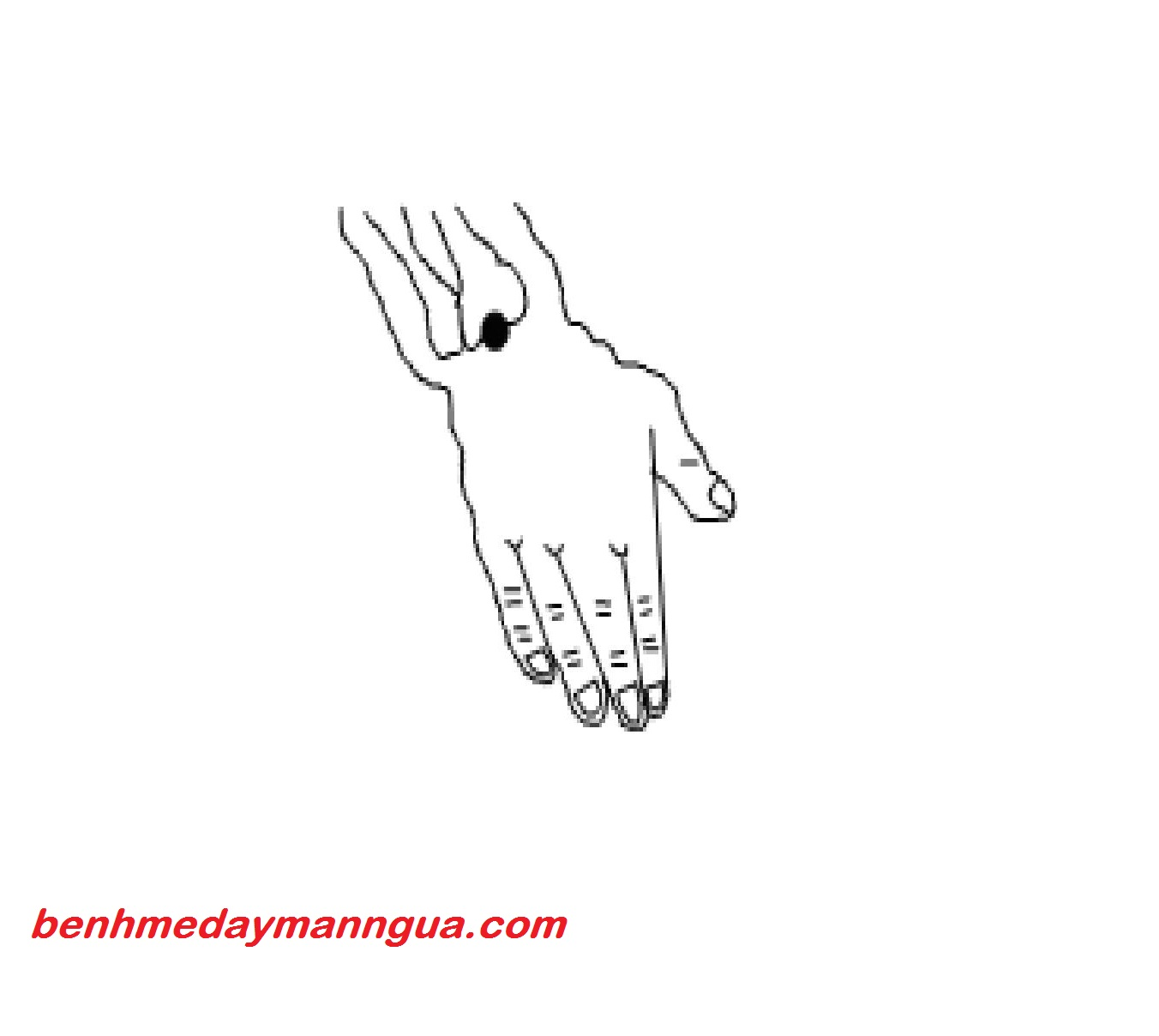 lieu-phap-bam-huyet-tri-man-ngua (2)