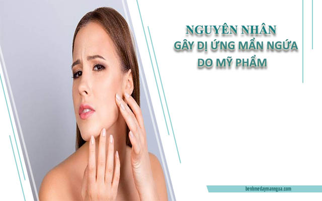 Nguyên nhân gây dị ứng da mẩn ngứa do mỹ phẩm