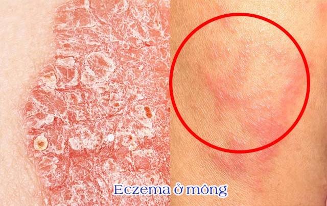 Nổi mẩn ngứa ở mông do bệnh ngoài da