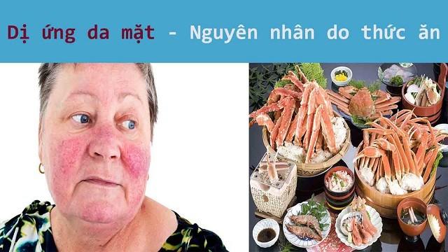 Nguyên nhân dị ứng da mặt bắt nguồn từ hải sản