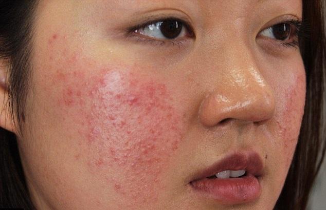 Nguyên nhân gây dị ứng da mặt