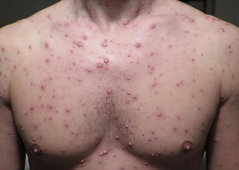 Kết quả hình ảnh cho bệnh thủy đậu