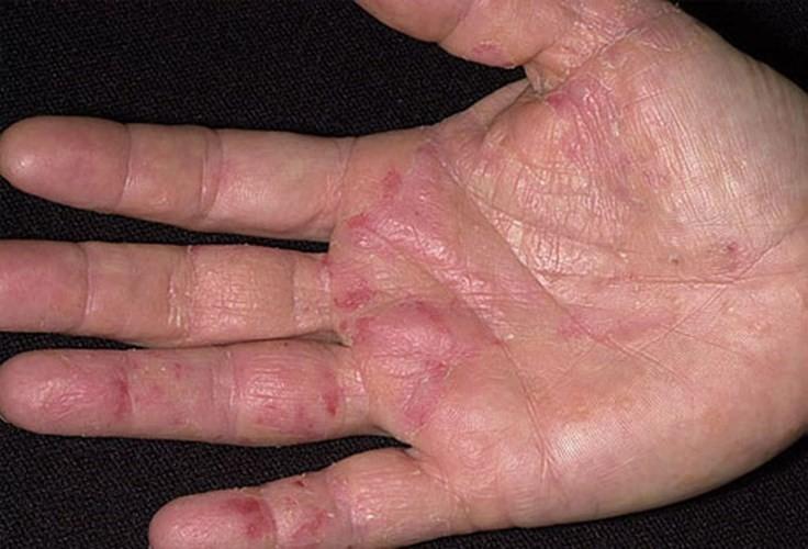 ngứa lòng bàn tay bàn chân là bệnh gì