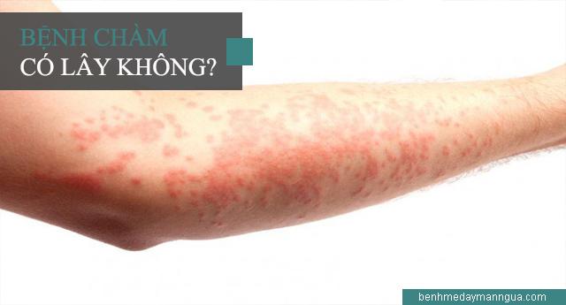 Bệnh chàm có khả năng lây nhiễm hay không?