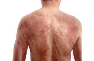 Những thông tin cần biết về bệnh mề đay sắc tố