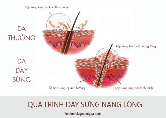 da bình thường và da bị dày sừng nang lông