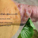 Hướng dẫn cách chữa bệnh tổ đỉa bằng lá lốt