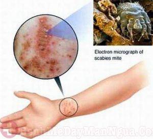 Mẩn đỏ và ngứa da do ghẻ