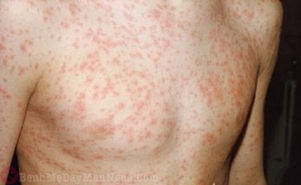 Mẩn đỏ và ngứa da do sốt phát ban