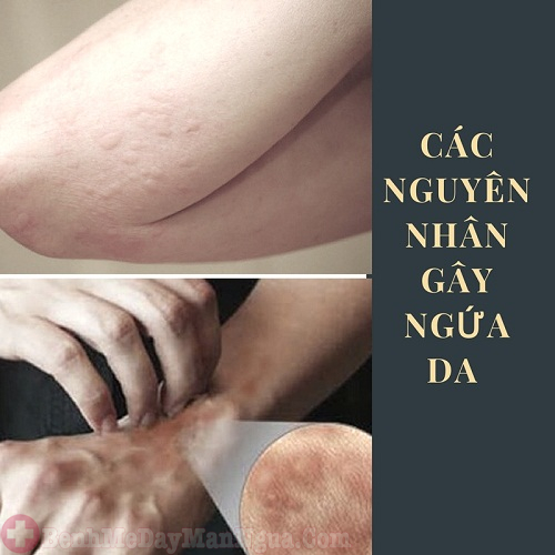 Các nguyên nhân gây ngứa da chớ nên xem thường