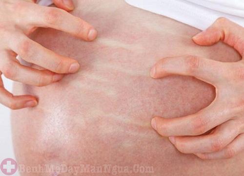 Phát ban đỏ khi mang thai biểu hiện không nên coi thường