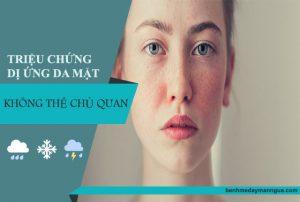 Triệu chứng dị ứng da mặt