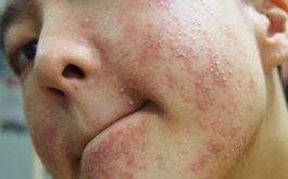 Triệu chứng da mặt bị dị ứng nên sớm phát hiện