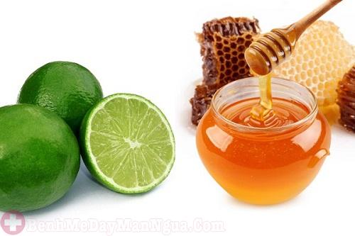 trị dị ứng da bằng mật ong và chanh