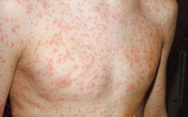 Làm sao khi bị nổi phát ban đỏ nhưng không sốt? Có nguy hiểm không