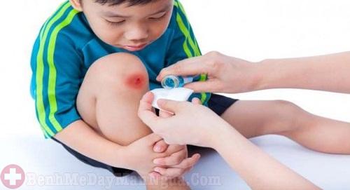 Mách bạn cách trị ngứa da khi lên da non hiệu quả nhanh