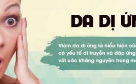 Mẹo chữa da mặt bị dị ứng mỹ phẩm và cách chăm sóc da hiệu quả