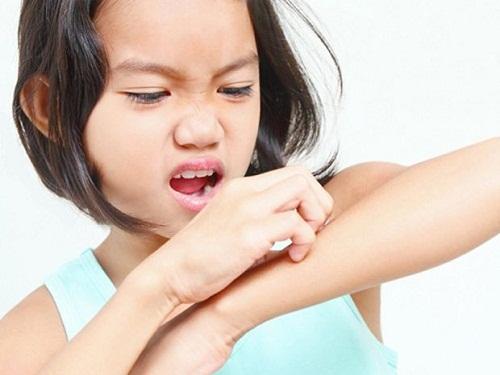 Thường xuyên bị ngứa ngoài da vào mùa đông phải làm sao?