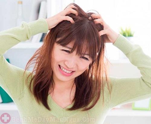 Top 4 dầu gội trị ngứa da đầu được chị em tin dùng nhất hiện nay