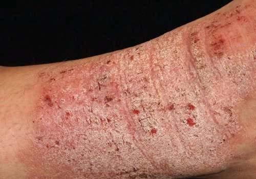 6 biến chứng bệnh Eczema không nên coi thường