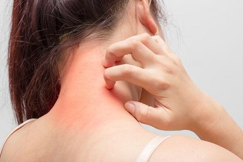 Bị nổi mẩn đỏ khắp người sau khi quan hệ có nguy hiểm không?