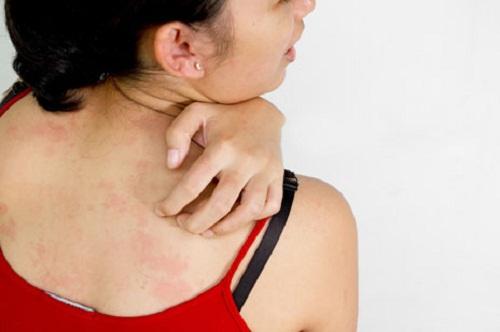Cách khắc phục nổi mẩn đỏ ngứa ở lưng nhanh chóng