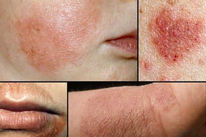 Giải đáp bệnh eczema có nguy hiểm không?