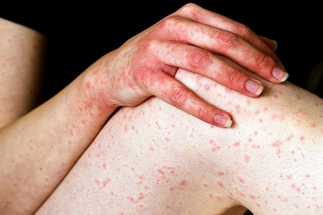 Các vết mẩn đỏ là dấu hiệu của rất nhiều loại bệnh