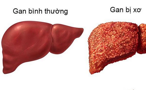 Chức năng gan suy giảm khiến độc tố không được bài tiết ra khỏi cơ thể biểu hiện là mẩn ngứa phán ban