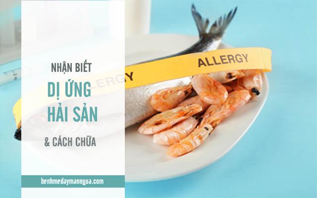 nhận biết và cách chữa dị ứng hải sản