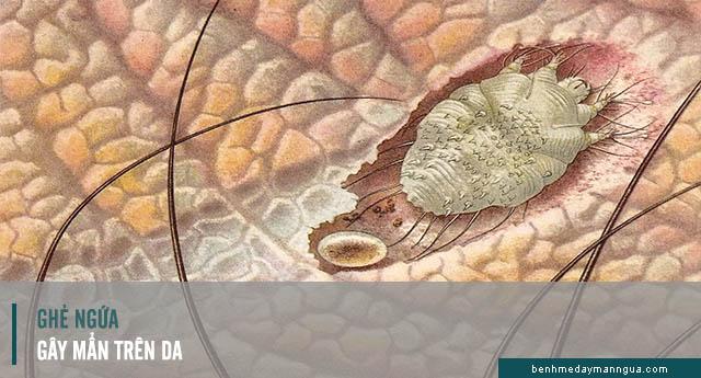 ghẻ ngứa gây ra tình trạng mẩn ngứa trên da