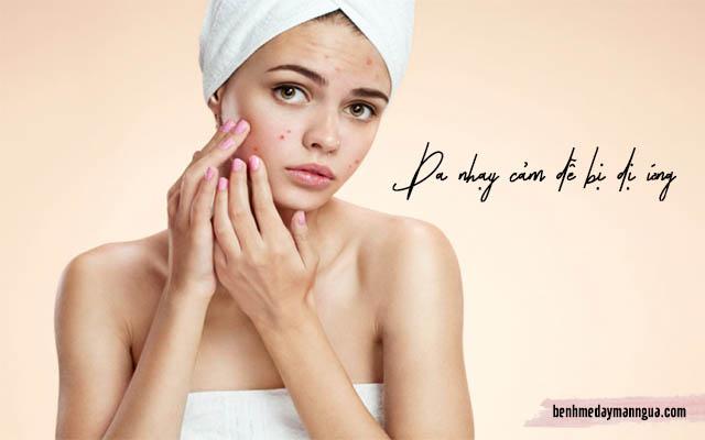dị ứng sữa rửa mặt ở da khô và da nhạy cảm