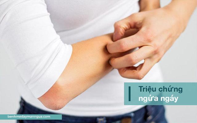 ngứa ngáy là triệu chứng điển hình của phong ngứa