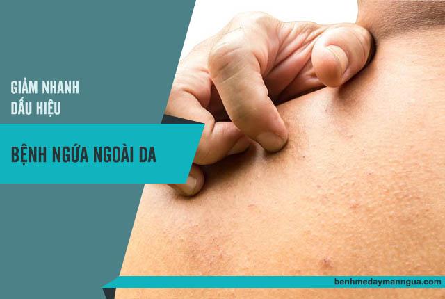 thuốc chữa bệnh ngứa ngoài da
