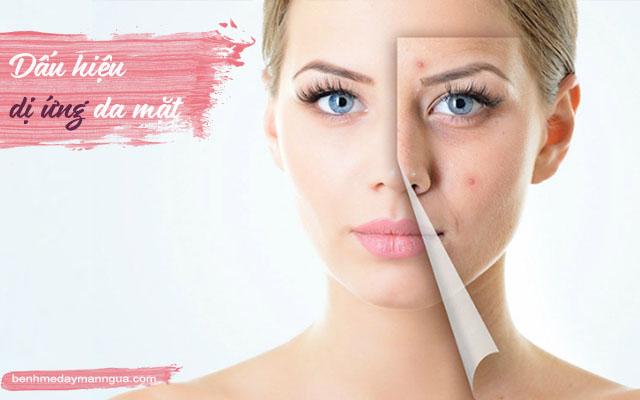 dấu hiệu dị ứng da mặt