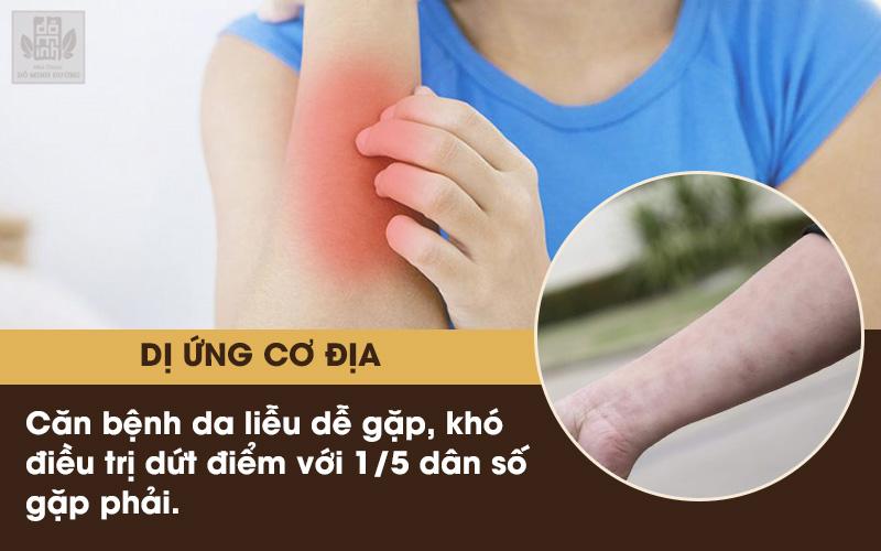 Điều trị bệnh dị ứng cơ địa ngoài da cần đúng cách và áp dụng các biện pháp phòng ngừa hợp lý