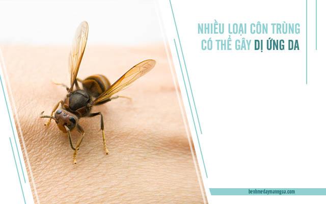 triệu chứng dị ứng da do côn trùng
