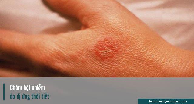 triệu chứng chàm bội nhiễm do dị ứng thời tiết
