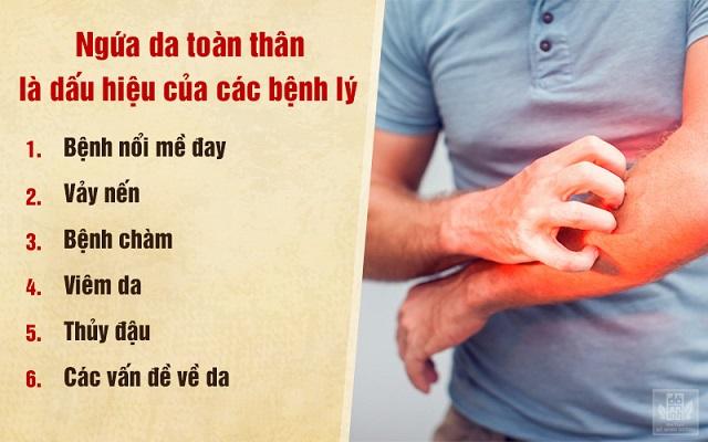 Ngứa da toàn thân là biểu hiện của các bệnh lý về da