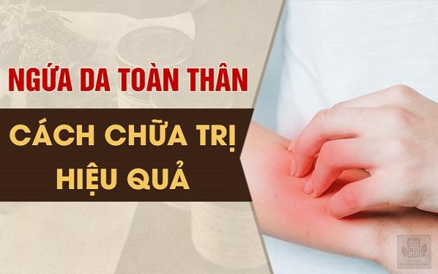 Điều trị sớm bệnh ngứa da toàn thân cần đúng cách, triệt tiêu nguyên nhân gây bệnh