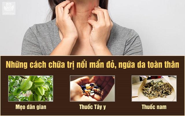 Những cách chữa ngứa da toàn thân phổ biến