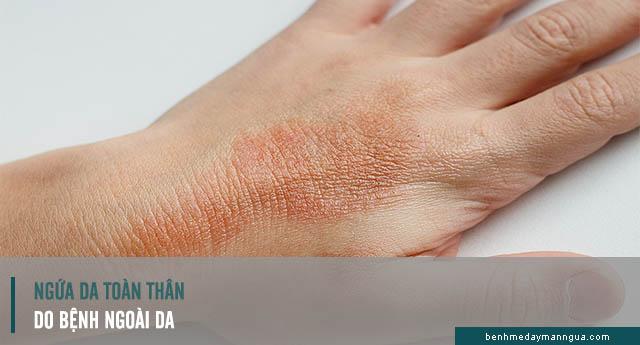 ngứa da toàn thân do bệnh ngoài da