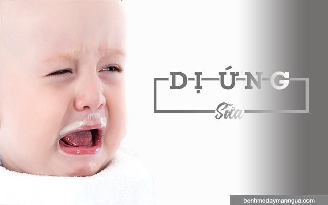 dấu hiệu dị ứng sữa ở trẻ