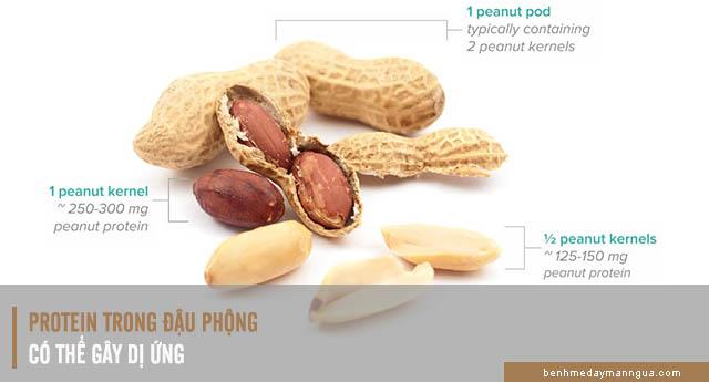 nguyên nhân dị ứng đậu phộng