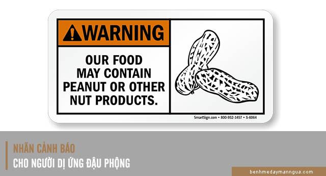 phòng tránh dị ứng đậu phộng