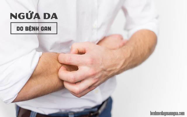 dấu hiệu ngứa da do bệnh gan