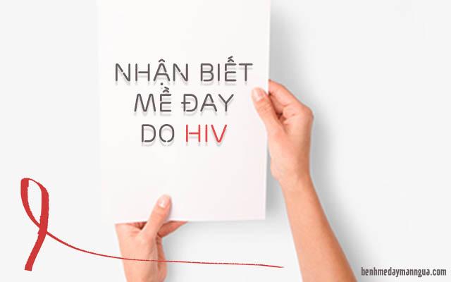 nổi mề đay HIV