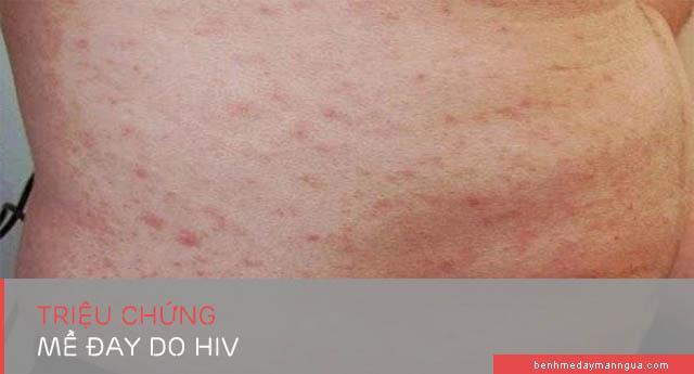 triệu chứng mề đay do HIV