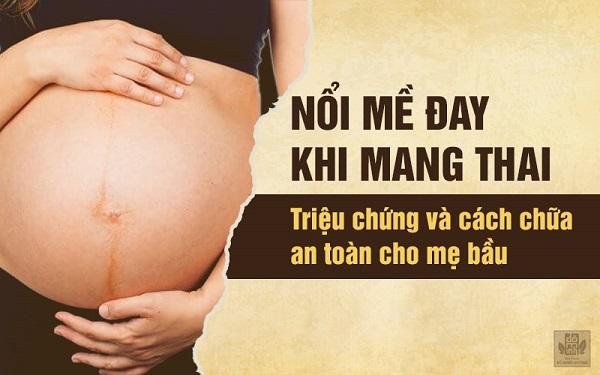 Triệu chứng và cách chữa nổi mề đay khi mang thai an toàn cho mẹ bầu